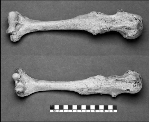 Remains of 800 year old Ballyshannon (Donegal, Ireland) Man (Skeleton 331) showing evidence of HME / Osteochondromas.